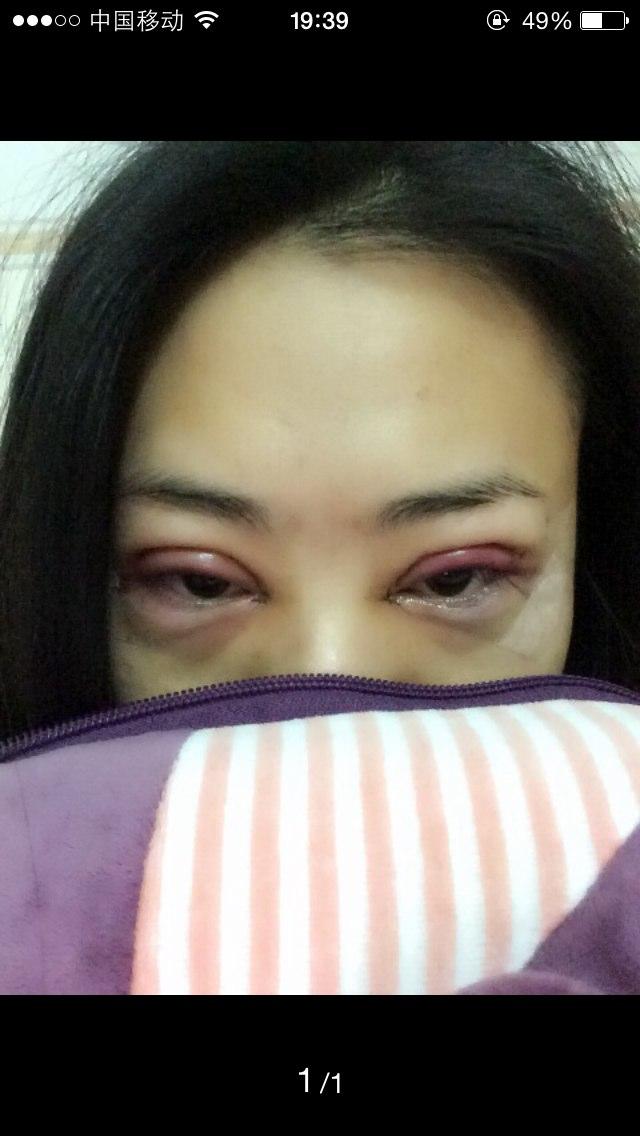 眼睛变型记 -成功