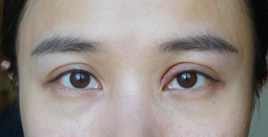 看得出小变化吗?双眼皮矫正+缩鼻翼