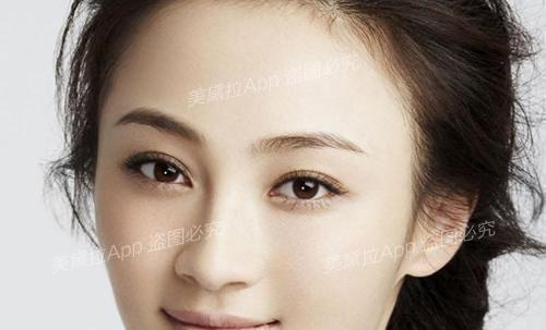 为什么你的双眼皮不漂亮?形状没选对